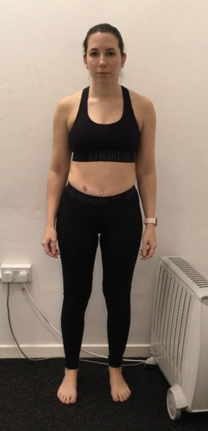 Claire Ward Before Photo - July