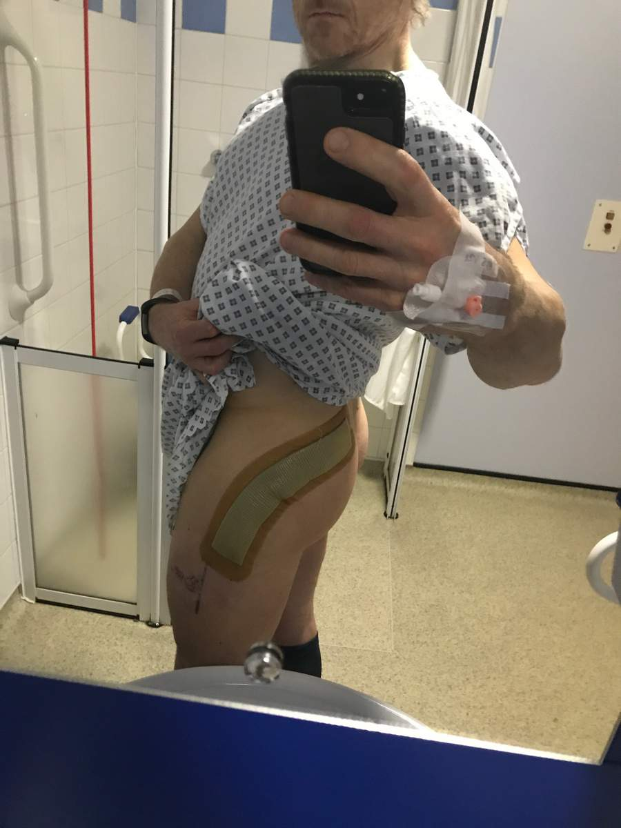 Large scar and dressing from the operation. Birmingham Hip Resurface