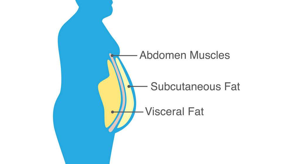 Schematic of visceral and subcutaneous fat.